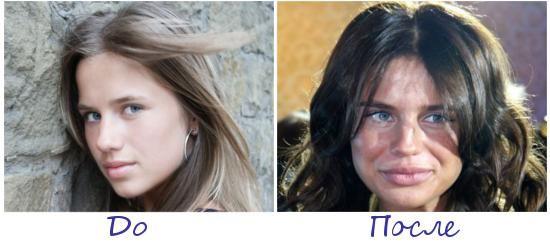 Алекса (Александра Чвикова) жертва пластической хирургии фото до и после