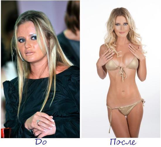 Дана Борисова фото до и после похудения