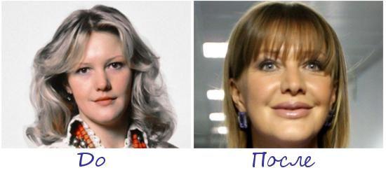 Елена Проклова жертва пластической хирургии фото до и после