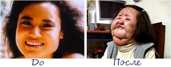 Ханг Миоку (Hang Mioku) жертва пластической хирургии фото до и после