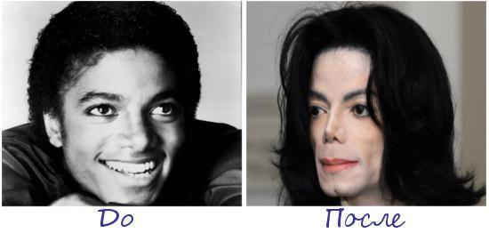 Жертва пластической хирургии Майкл Джексон (Michael Jackson) фото до и после