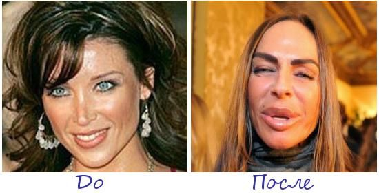 Жертва пластической хирургии Микаэла Романини (Michaela Romanini) фото до и после