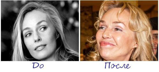 Наталья Андрейченко жертва пластической хирургии фото до и после
