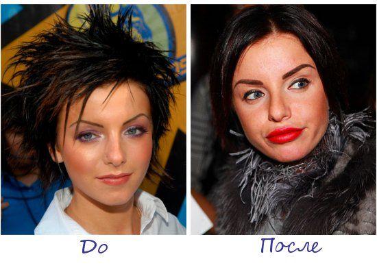 Жертва пластической хирургии Юлия Волкова фото до и после
