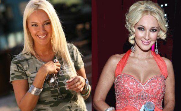 Кудрявцева до и после пластики фото
