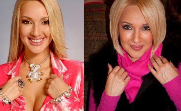 Лера Кудрявцева до и после операций фото
