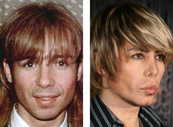 Сергей Зверев до и после пластической хирургии фото