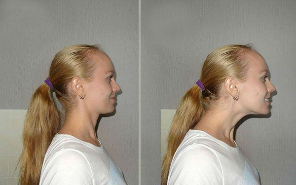 Вытягивание шеи фото