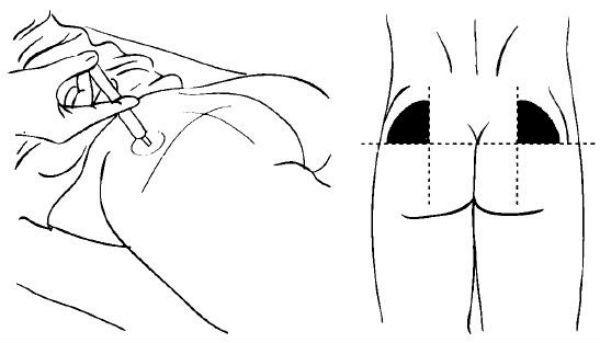 Как делать укол в ягодицу фото