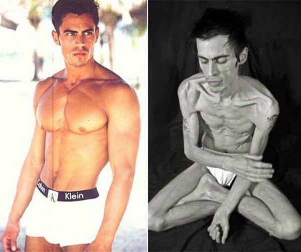 Анорексия у мужчин фото