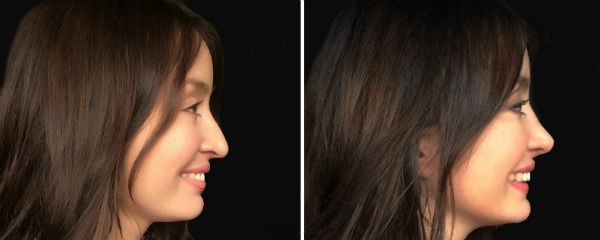 Ринопластика носа 13 фото