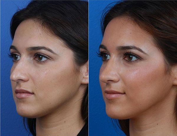 Ринопластика носа 14 фото