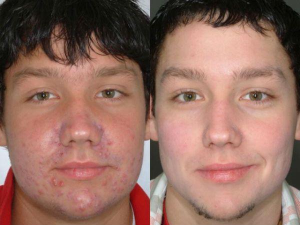 Ультразвуковая чистка лица 1 фото