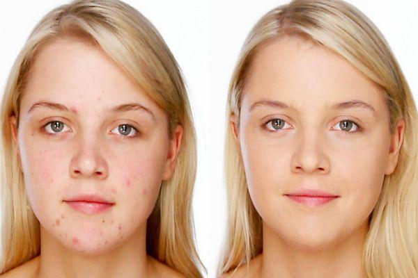 Ультразвуковая чистка лица 12 фото