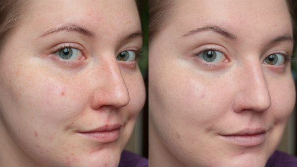 Ультразвуковая чистка лица 13 фото