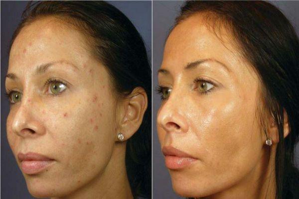Ультразвуковая чистка лица 3 фото