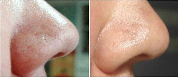 Ультразвуковая чистка лица 9 фото