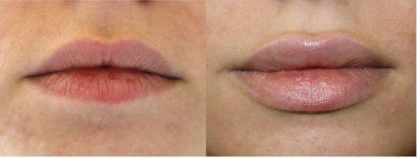 Увеличение губ гиалуроновой кислотой 5 фото