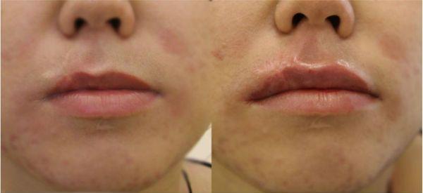 Увеличение губ гиалуроновой кислотой 6 фото