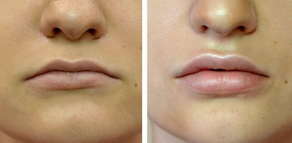 Увеличение губ гиалуроновой кислотой 8 фото