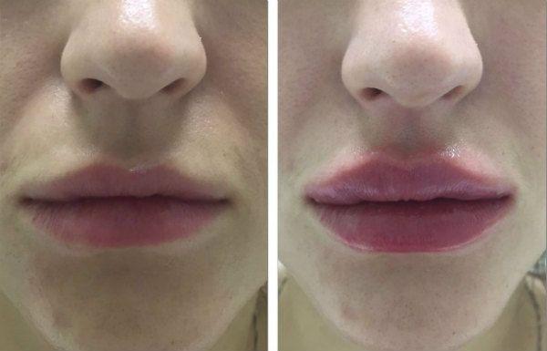 Увеличение губ гиалуроновой кислотой 9 фото