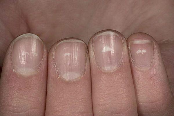 Белые точки на ногтях фото