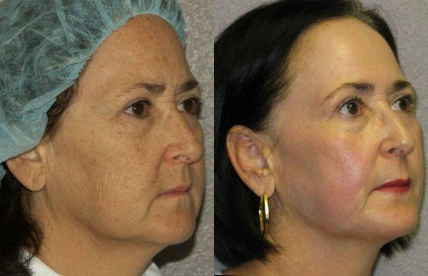 Омоложение лица без хирургического вмешательства фото