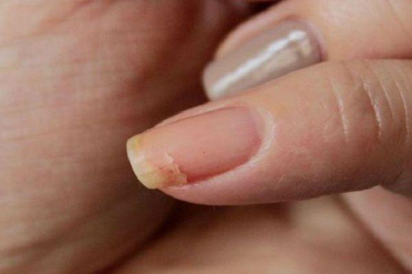 Ломкость ногтей фото