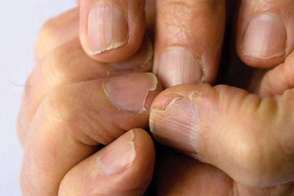 Ломкие ногти фото