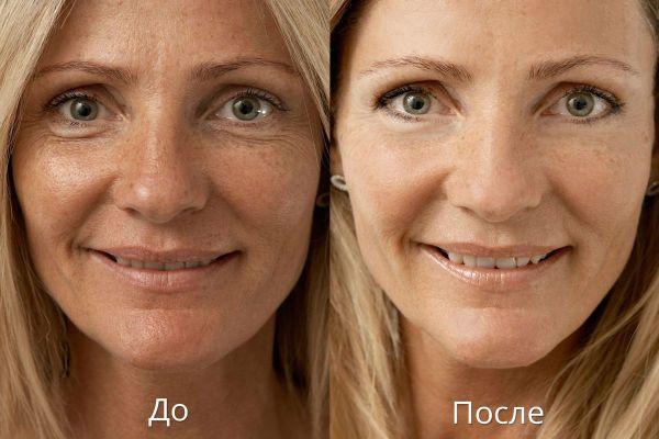 Примеры результатов биоревитализации кожи лица гиалуроновой кислотой фото