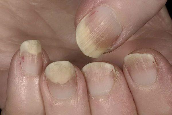 Онихолизис ногтей фото