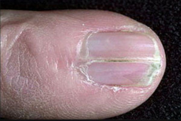 Онихорексис ногтей фото