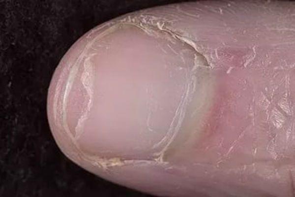 Онихошизис ногтей фото