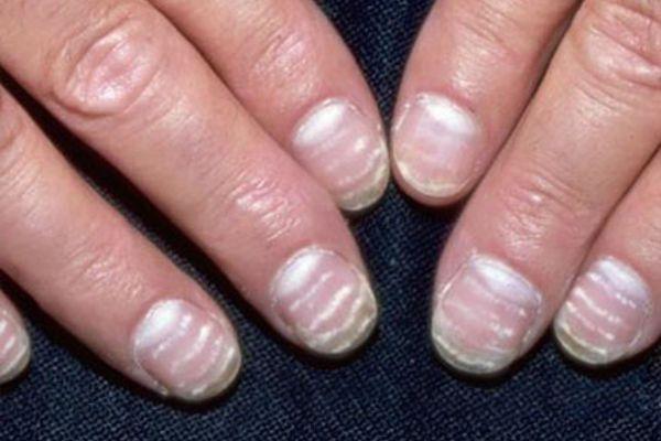 Полосы на ногтях фото