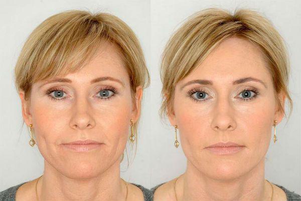 Биоревитализация до и после фото
