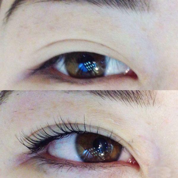 Пример ламинирования под глаза азиатского типа фото