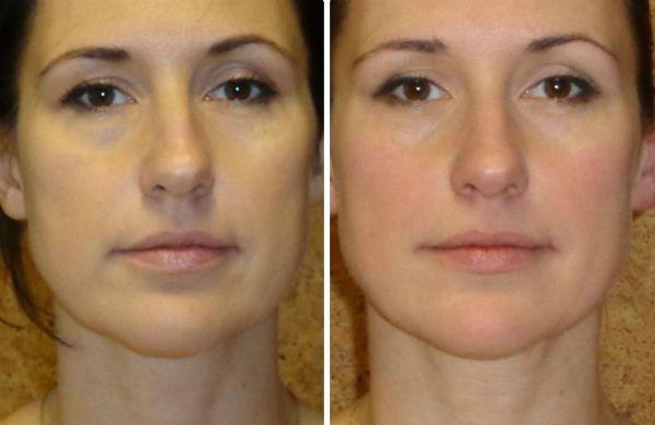 Улучшение кожи фото