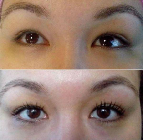 Пример ламинирования под глубоко посаженные глаза  фото