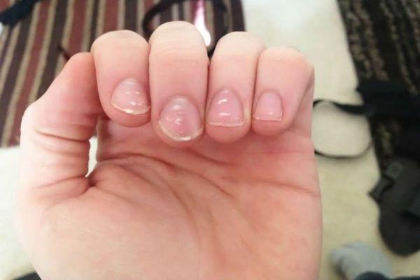 Точки на ногтях фото