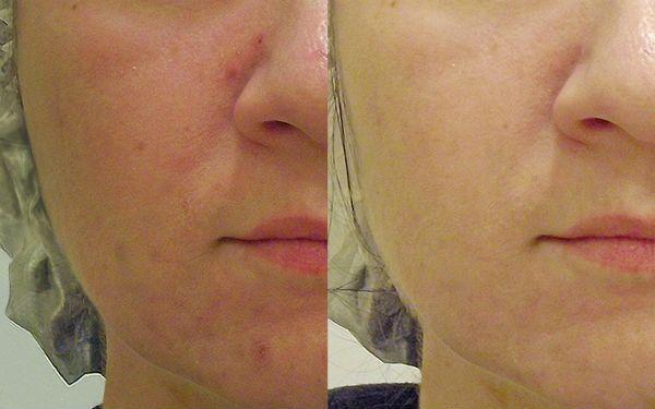Алмазный пилинг для улучшения состояния верхних и глубоких слоев эпидермиса кожи фото