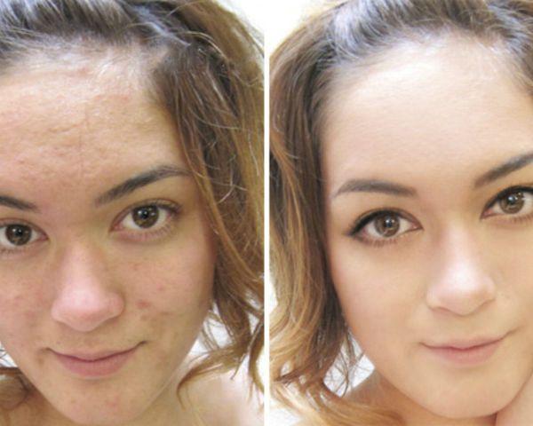 Алмазный пилинг для улучшения состояния верхних и глубоких слоев кожи фото