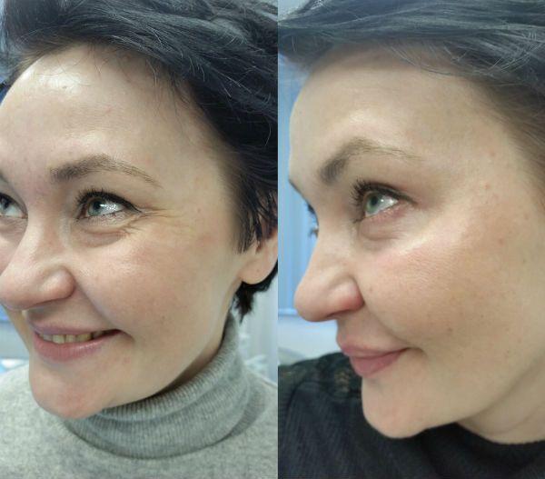 Алмазный пилинг для улучшения состояния кожи фото