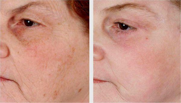 Алмазный пилинг для улучшения состояния верхних слоев кожи фото