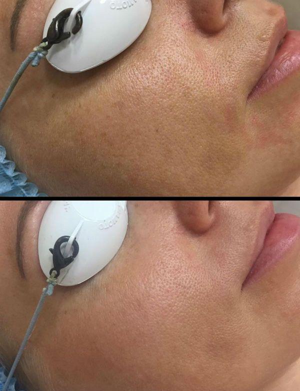 Алмазный пилинг для улучшения состояния верхних и глубоких слоев эпидермиса кожи до и после фото