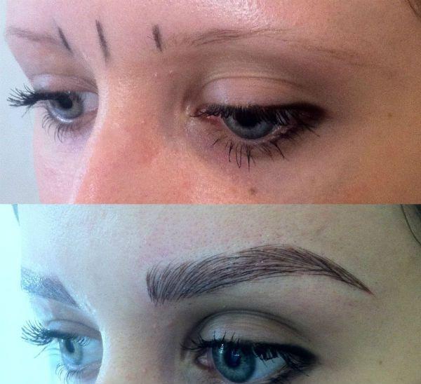 Пример до и после фото