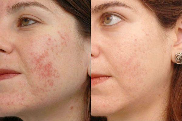 Фракционный пилинг для преображения и омоложения кожи фото