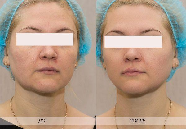 Фракционный пилинг для преображения и омоложения кожи лица фото