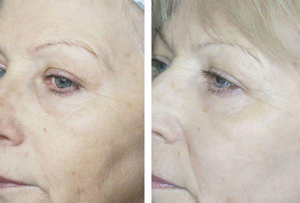 Фракционный пилинг для преображения и омоложения кожи лица до и после фото