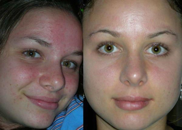 Глубокий пилинг для улучшения и омоложения эпидермиса лица фото