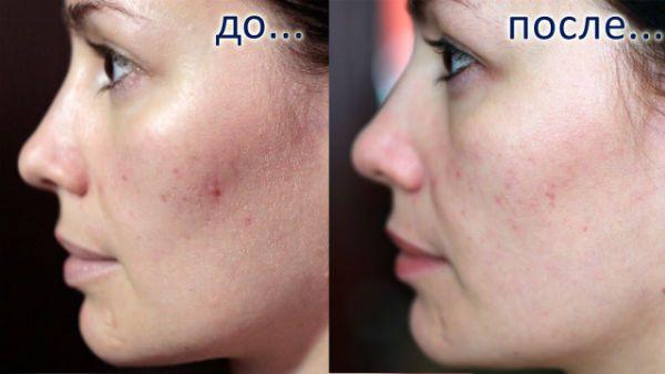 Глубокий пилинг для улучшения и омоложения эпидермиса лица до и после фото